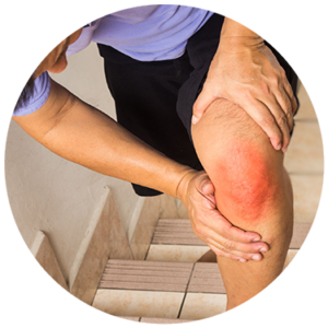 Non-Surgical Knee Relief