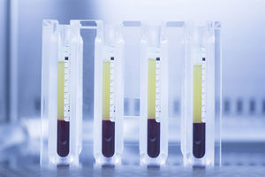What is Platelet-Rich Plasma?